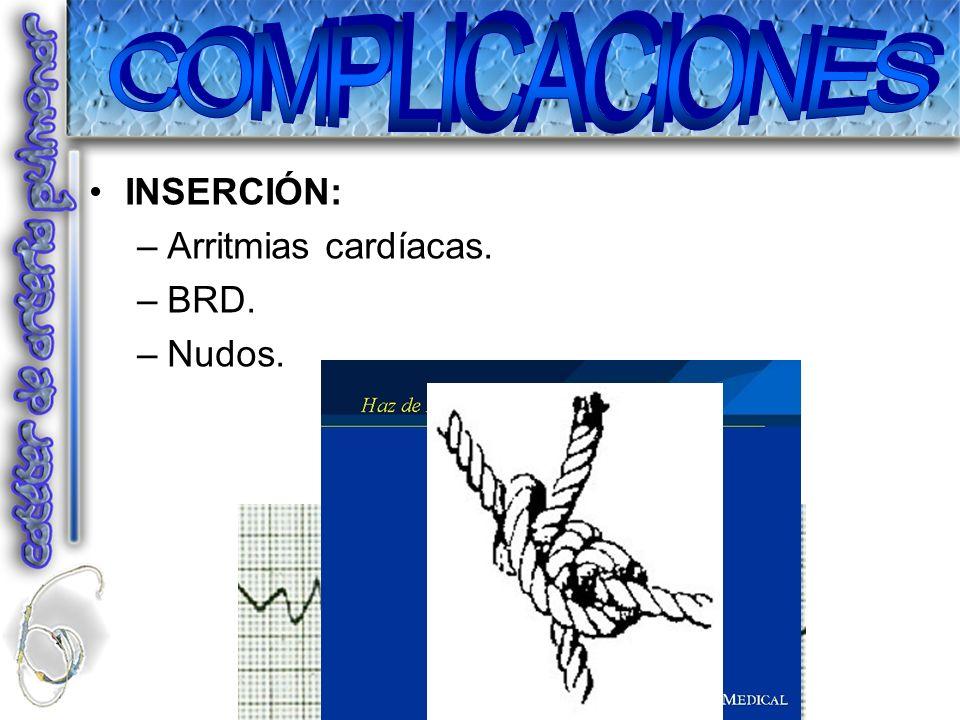 COMPLICACIONES INSERCIÓN: Arritmias cardíacas. BRD. Nudos.