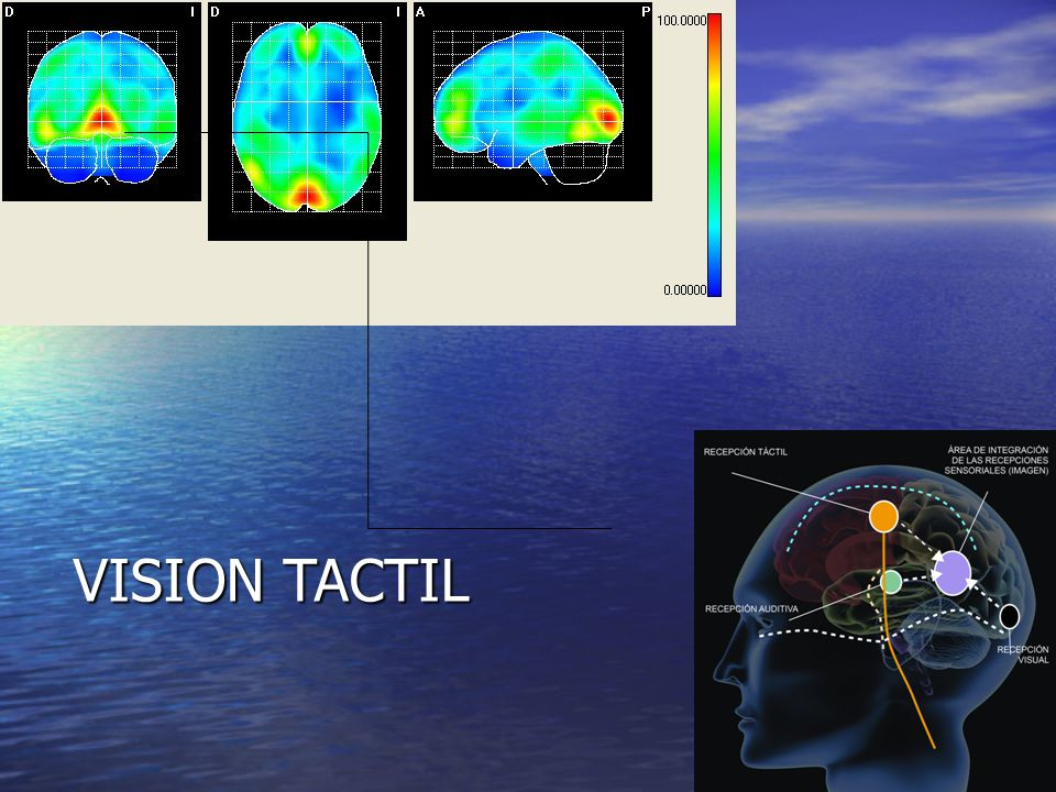 VISION TACTIL