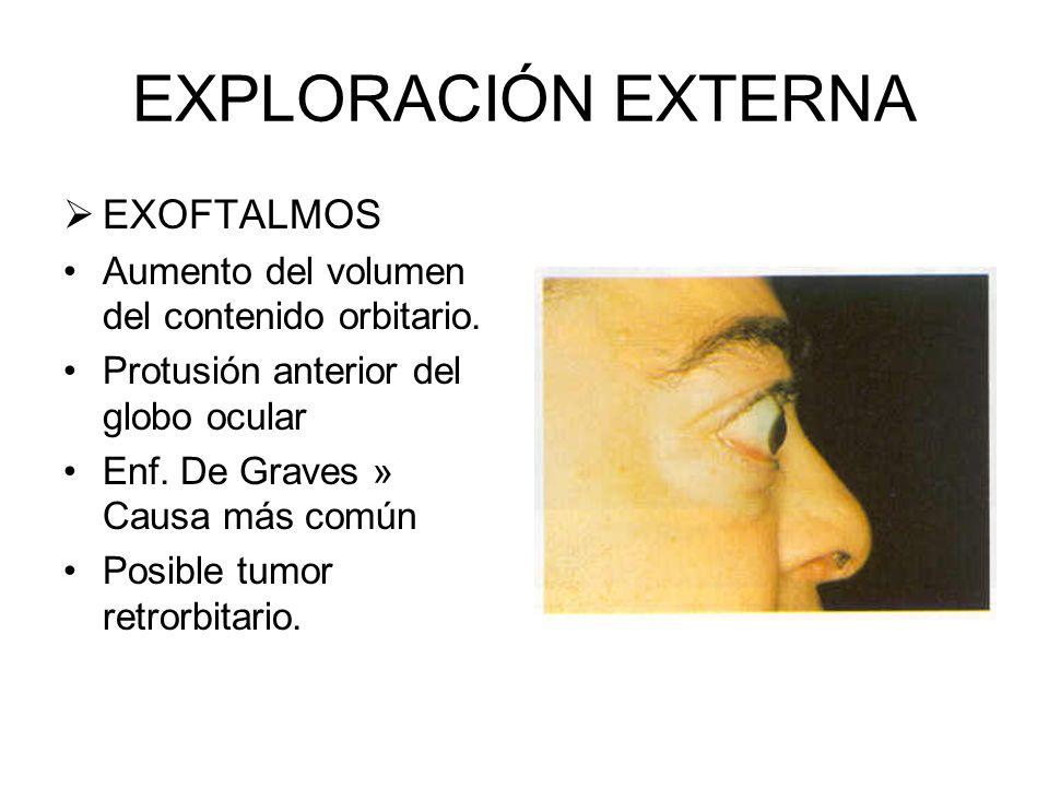 EXPLORACIÓN EXTERNA EXOFTALMOS