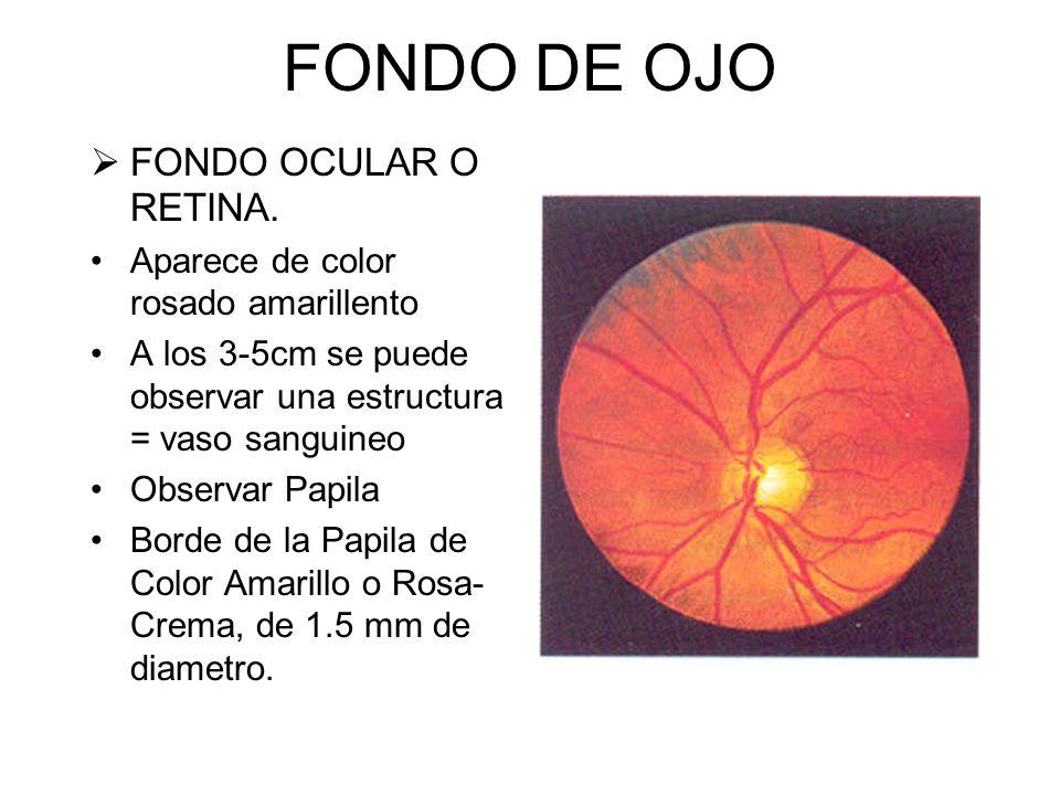 FONDO DE OJO FONDO OCULAR O RETINA.