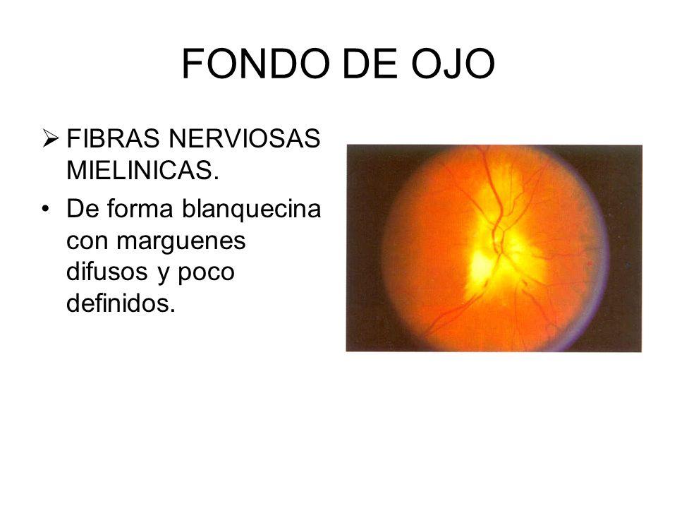 FONDO DE OJO FIBRAS NERVIOSAS MIELINICAS.