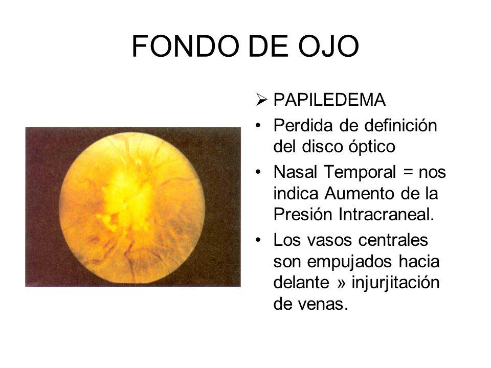 FONDO DE OJO PAPILEDEMA Perdida de definición del disco óptico