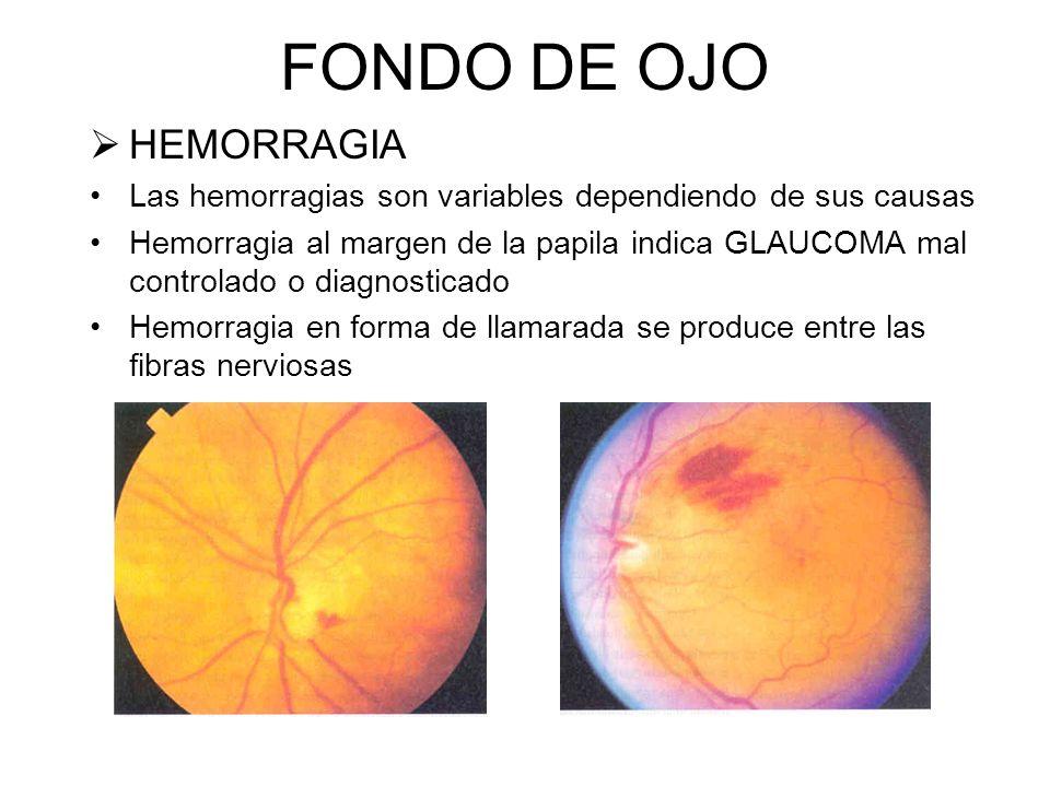 FONDO DE OJO HEMORRAGIA