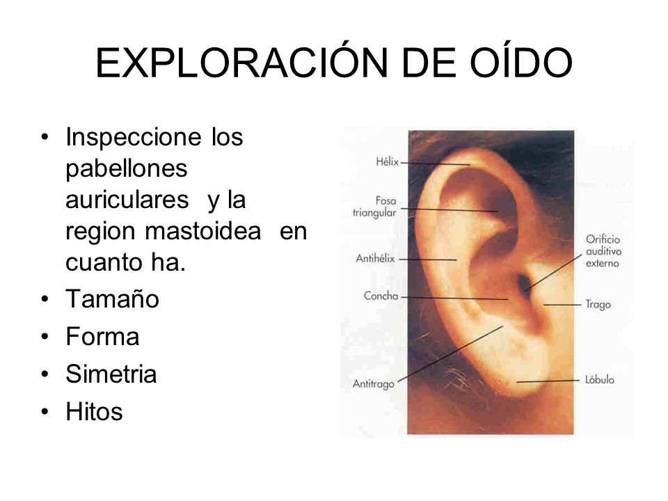 EXPLORACIÓN DE OÍDO Inspeccione los pabellones auriculares y la region mastoidea en cuanto ha. Tamaño.