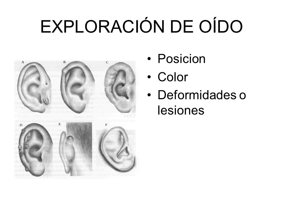 EXPLORACIÓN DE OÍDO Posicion Color Deformidades o lesiones