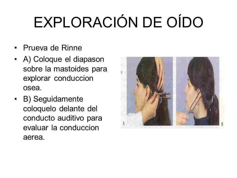 EXPLORACIÓN DE OÍDO Prueva de Rinne