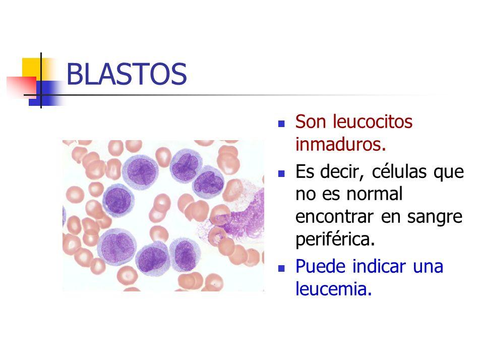BLASTOS Son leucocitos inmaduros.