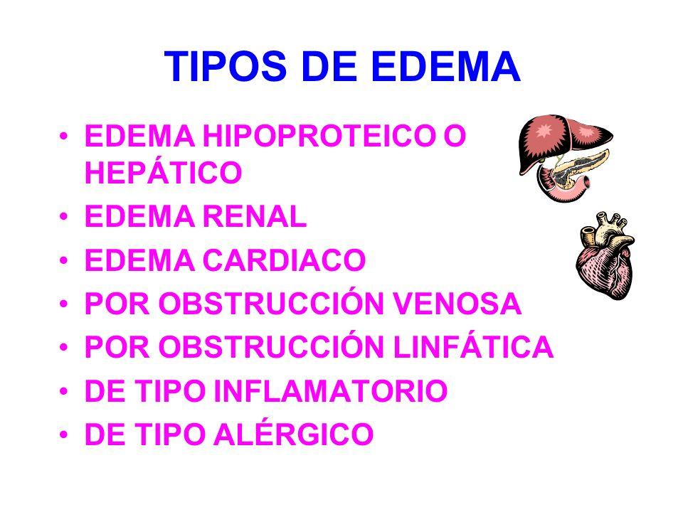 TIPOS DE EDEMA EDEMA HIPOPROTEICO O HEPÁTICO EDEMA RENAL