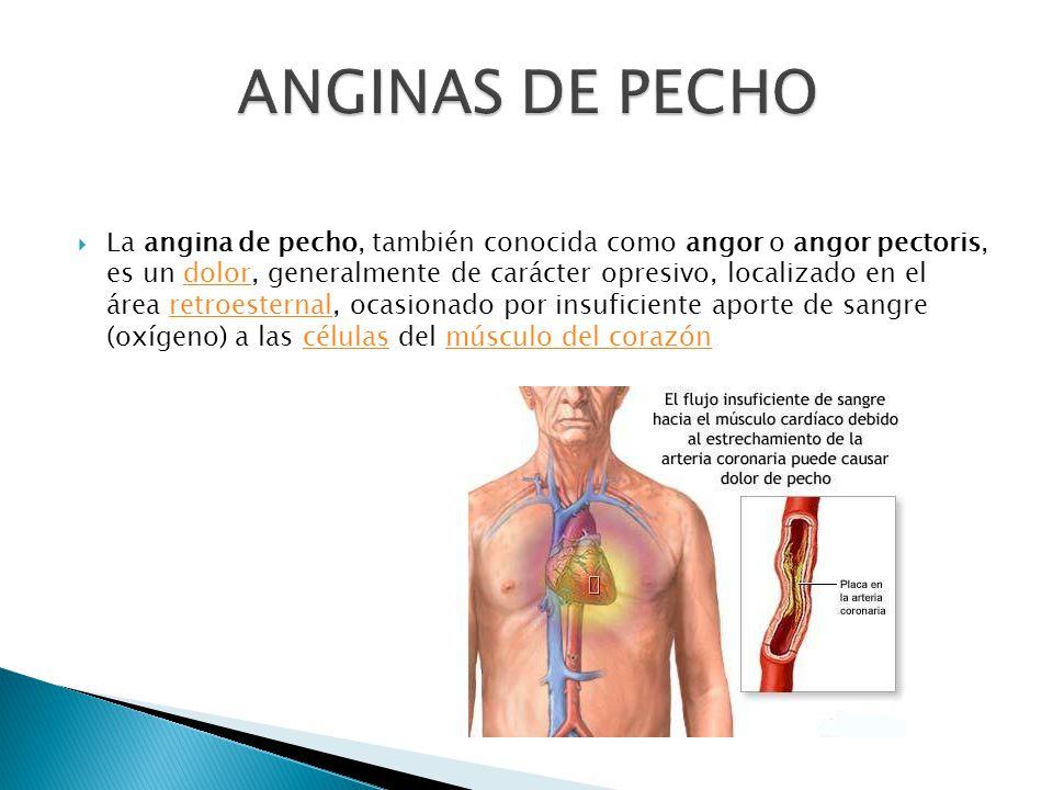 ANGINAS DE PECHO