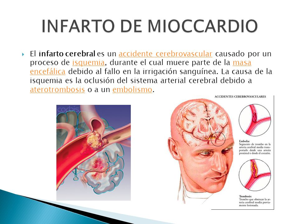 INFARTO DE MIOCCARDIO