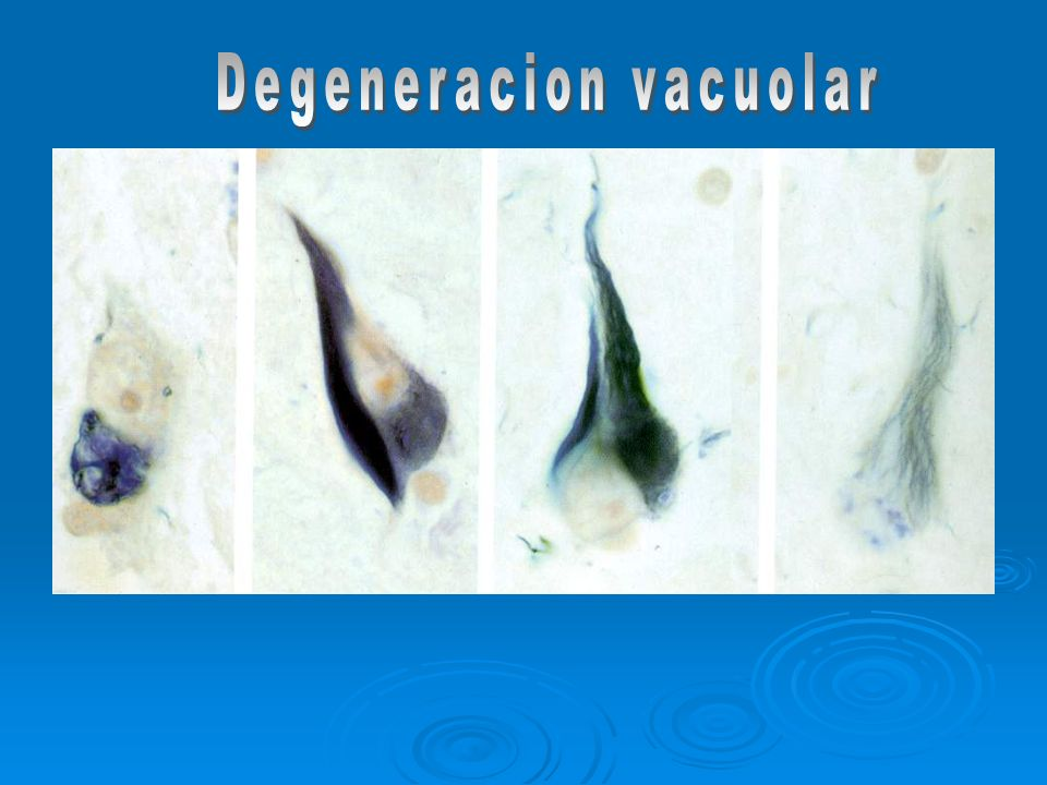 Degeneracion vacuolar