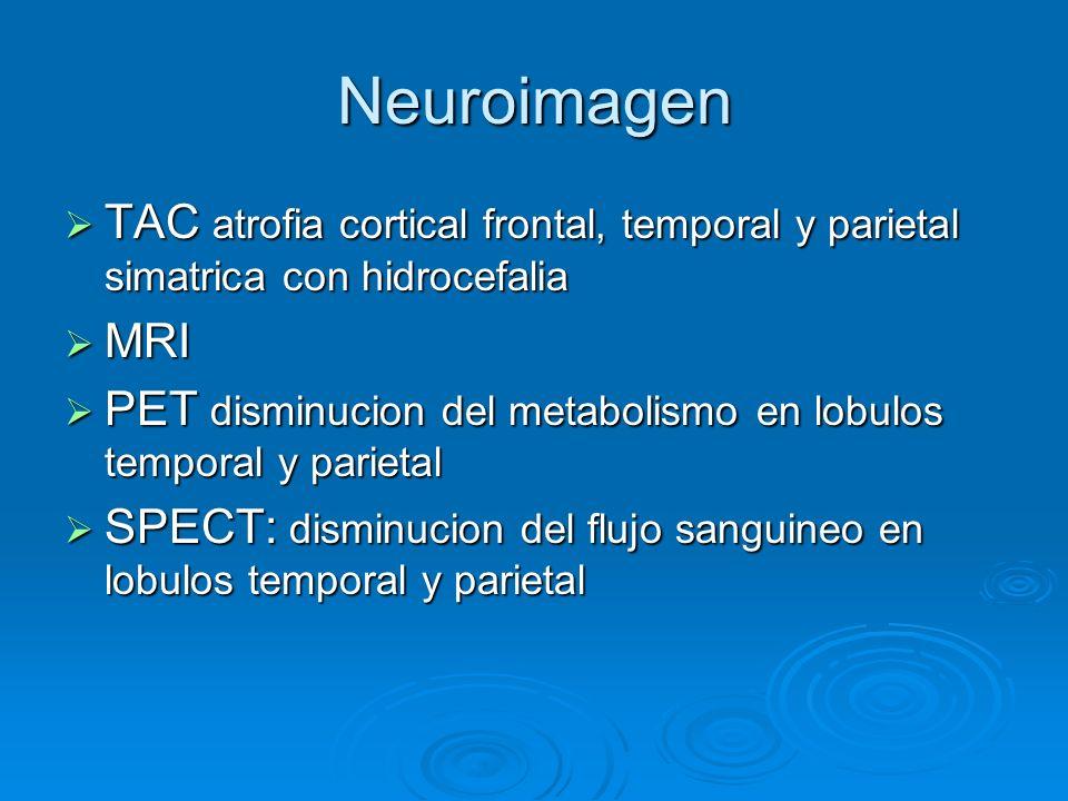 Neuroimagen TAC atrofia cortical frontal, temporal y parietal simatrica con hidrocefalia. MRI.