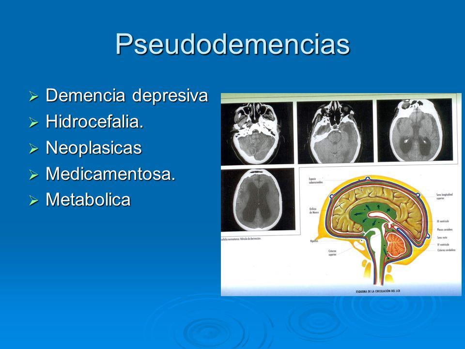 Pseudodemencias Demencia depresiva Hidrocefalia. Neoplasicas