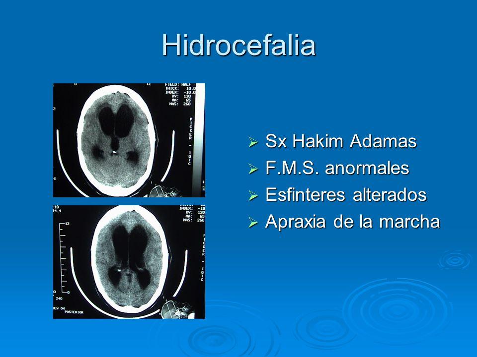 Hidrocefalia Sx Hakim Adamas F.M.S. anormales Esfinteres alterados