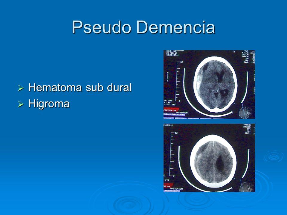 Pseudo Demencia Hematoma sub dural Higroma
