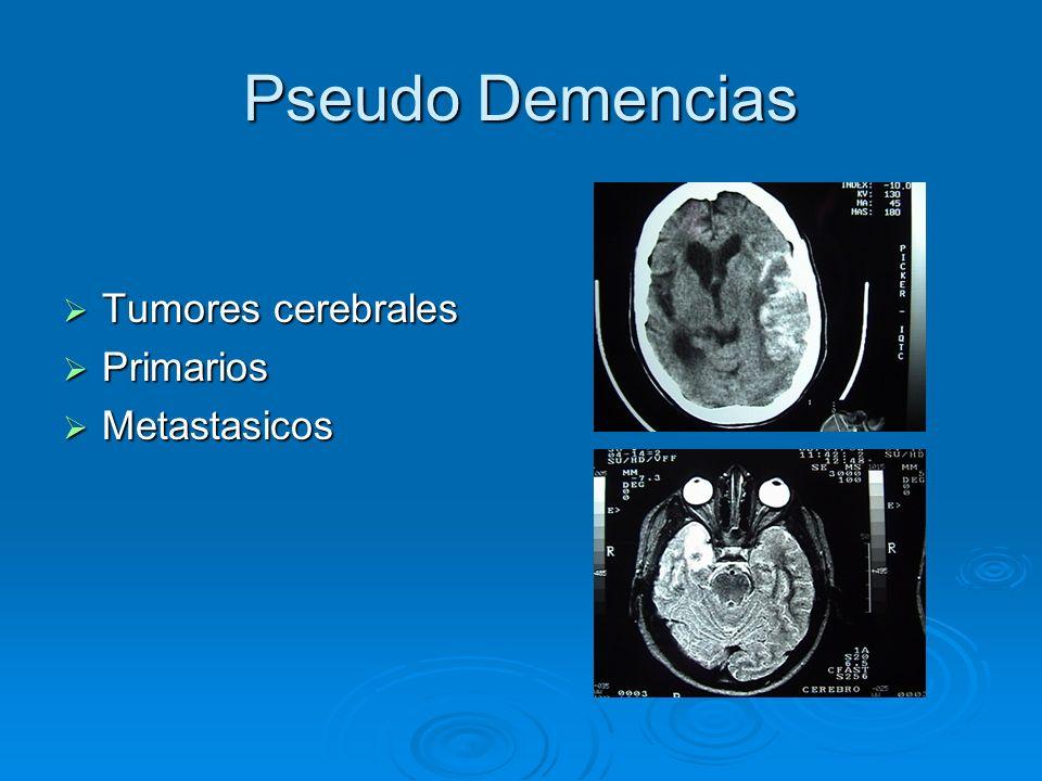 Pseudo Demencias Tumores cerebrales Primarios Metastasicos