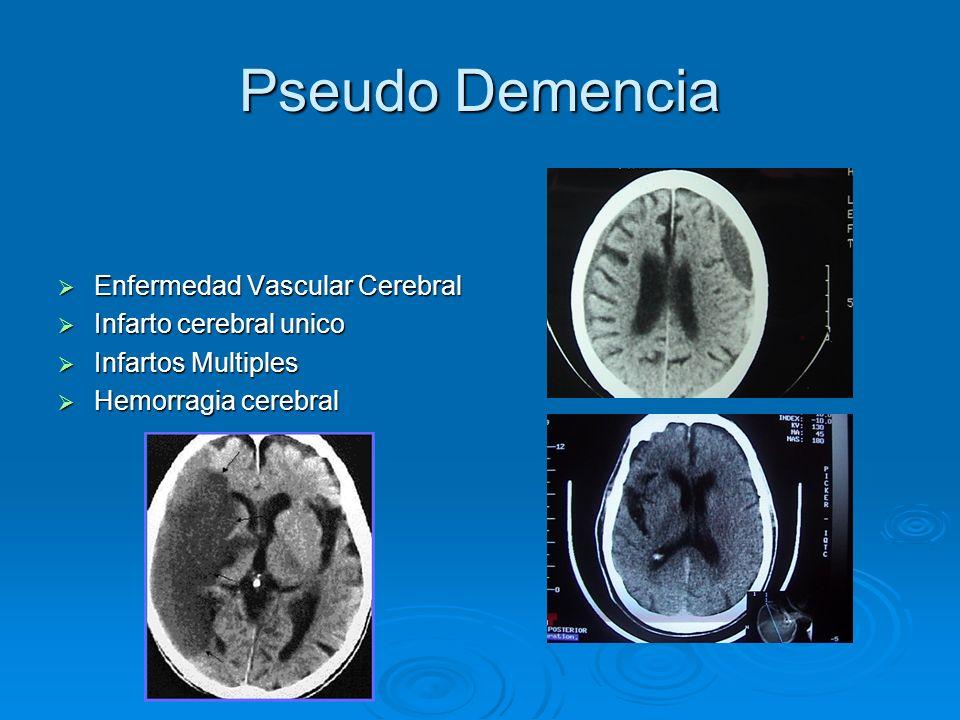 Pseudo Demencia Enfermedad Vascular Cerebral Infarto cerebral unico