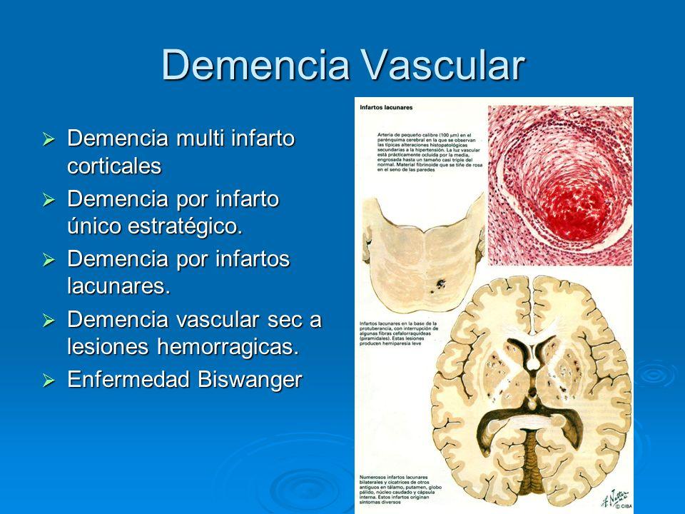 Demencia Vascular Demencia multi infarto corticales