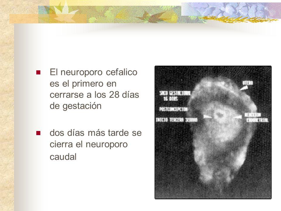 El neuroporo cefalico es el primero en cerrarse a los 28 días de gestación
