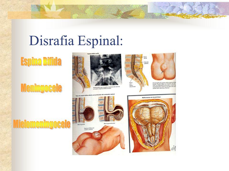 Disrafia Espinal: Espina Bifida Meningocele Mielomeningocele