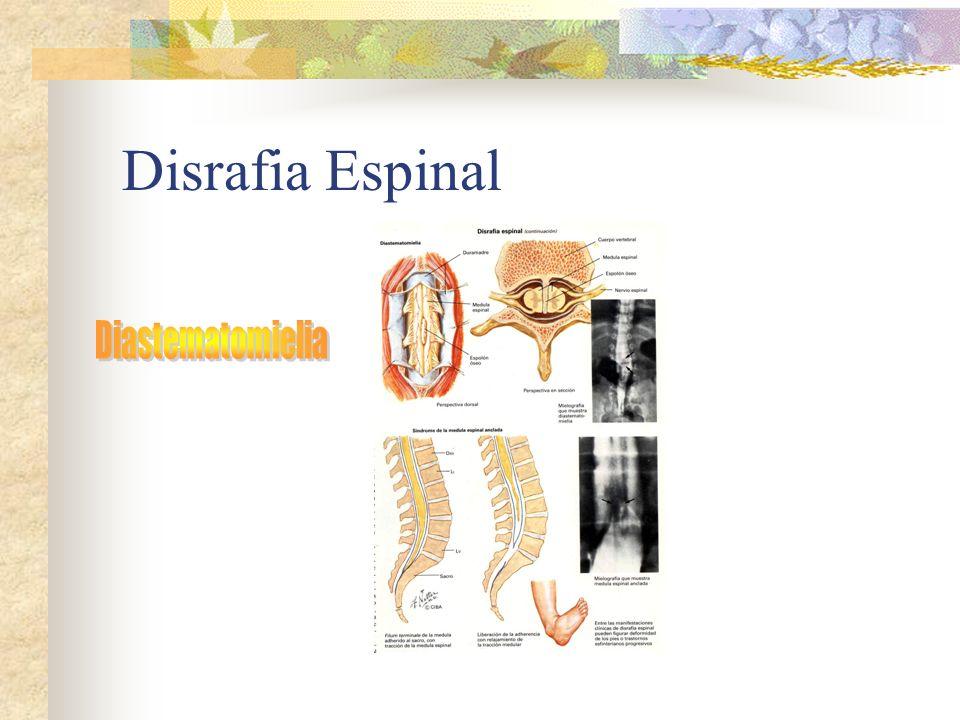Disrafia Espinal Diastematomielia
