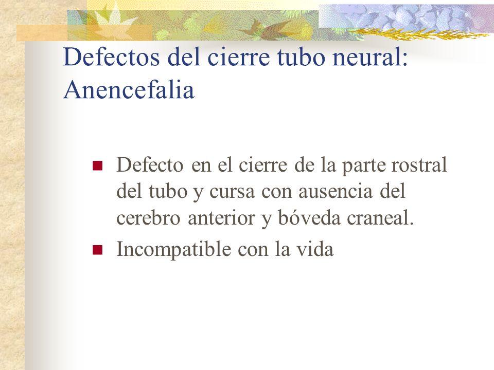 Defectos del cierre tubo neural: Anencefalia