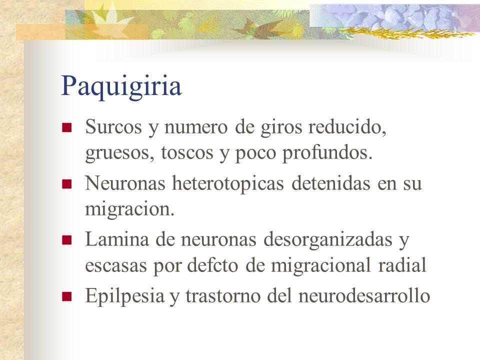 Paquigiria Surcos y numero de giros reducido, gruesos, toscos y poco profundos. Neuronas heterotopicas detenidas en su migracion.