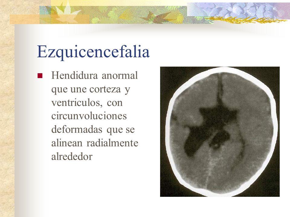 Ezquicencefalia Hendidura anormal que une corteza y ventriculos, con circunvoluciones deformadas que se alinean radialmente alrededor.