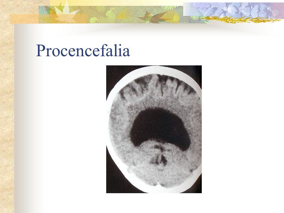 Procencefalia