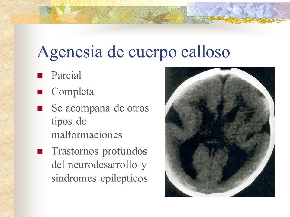 Agenesia de cuerpo calloso