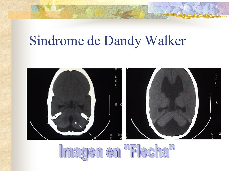 Sindrome de Dandy Walker