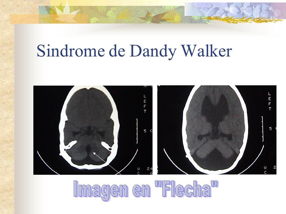 Sindrome de Dandy Walker