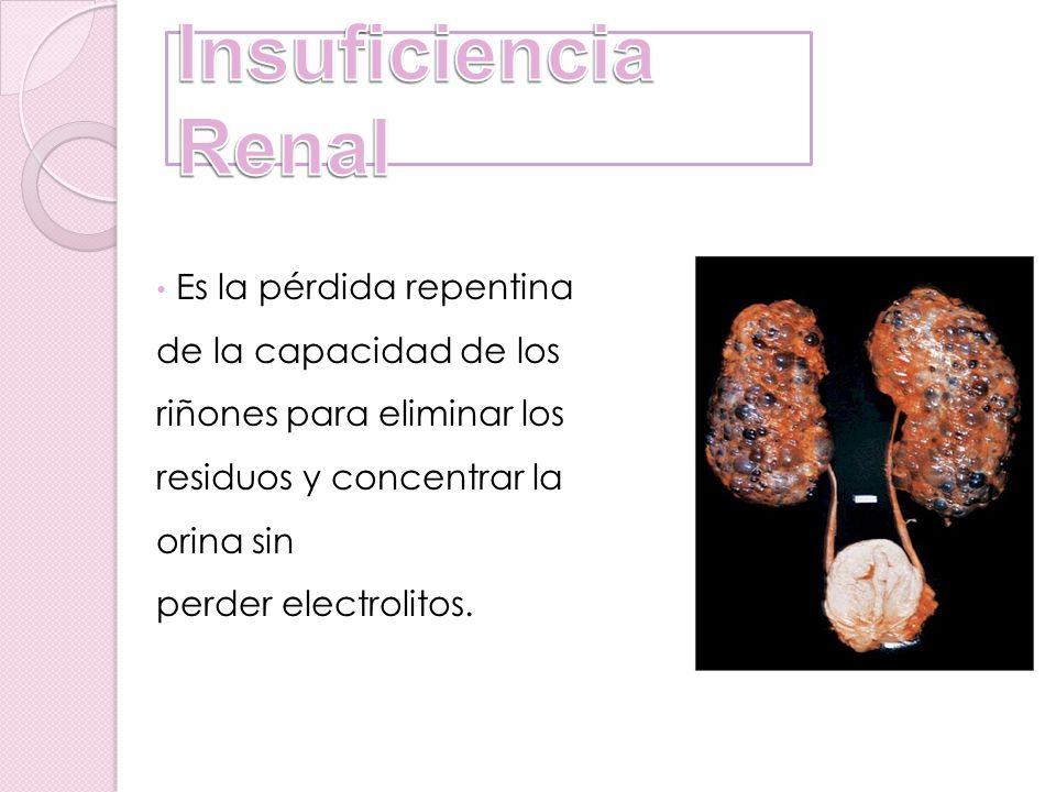 Insuficiencia Renal Es la pérdida repentina de la capacidad de los riñones para eliminar los residuos y concentrar la orina sin perder electrolitos.