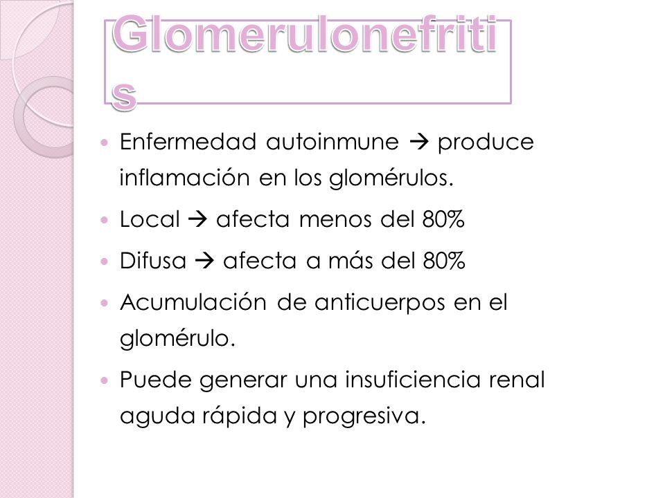 Glomerulonefritis Enfermedad autoinmune  produce inflamación en los glomérulos. Local  afecta menos del 80%