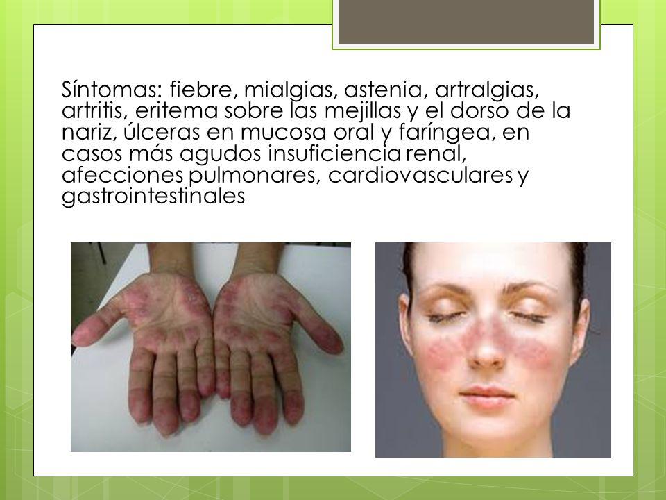 Síntomas: fiebre, mialgias, astenia, artralgias, artritis, eritema sobre las mejillas y el dorso de la nariz, úlceras en mucosa oral y faríngea, en casos más agudos insuficiencia renal, afecciones pulmonares, cardiovasculares y gastrointestinales