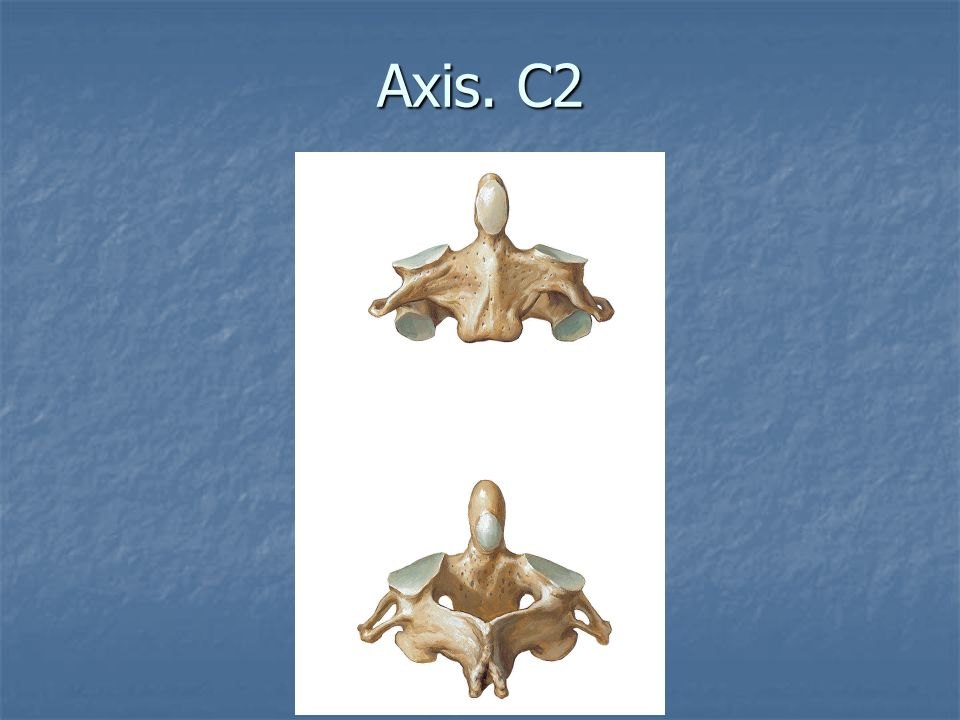 Axis. C2