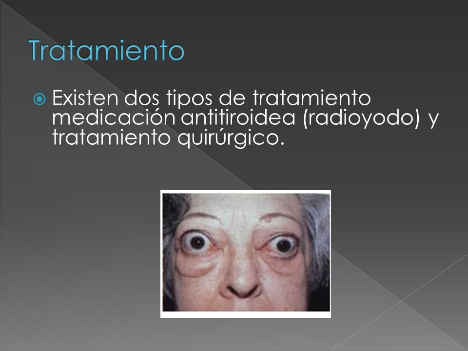 Tratamiento Existen dos tipos de tratamiento medicación antitiroidea (radioyodo) y tratamiento quirúrgico.