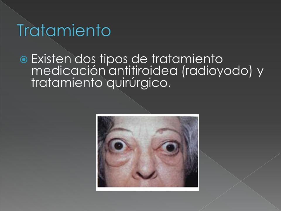TratamientoExisten dos tipos de tratamiento medicación antitiroidea (radioyodo) y tratamiento quirúrgico.