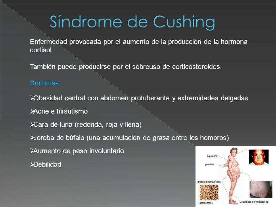 Síndrome de CushingEnfermedad provocada por el aumento de la producción de la hormona cortisol.