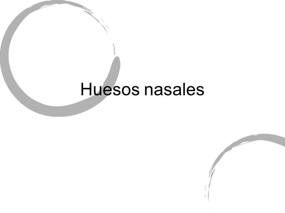 Huesos nasales