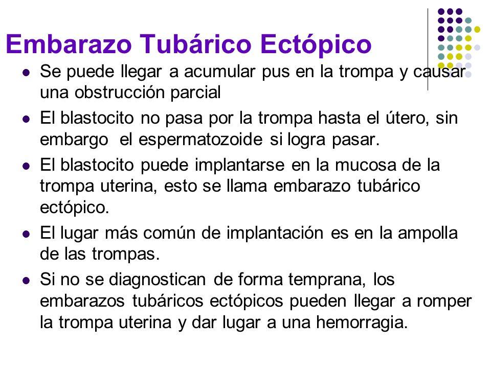 Embarazo Tubárico Ectópico