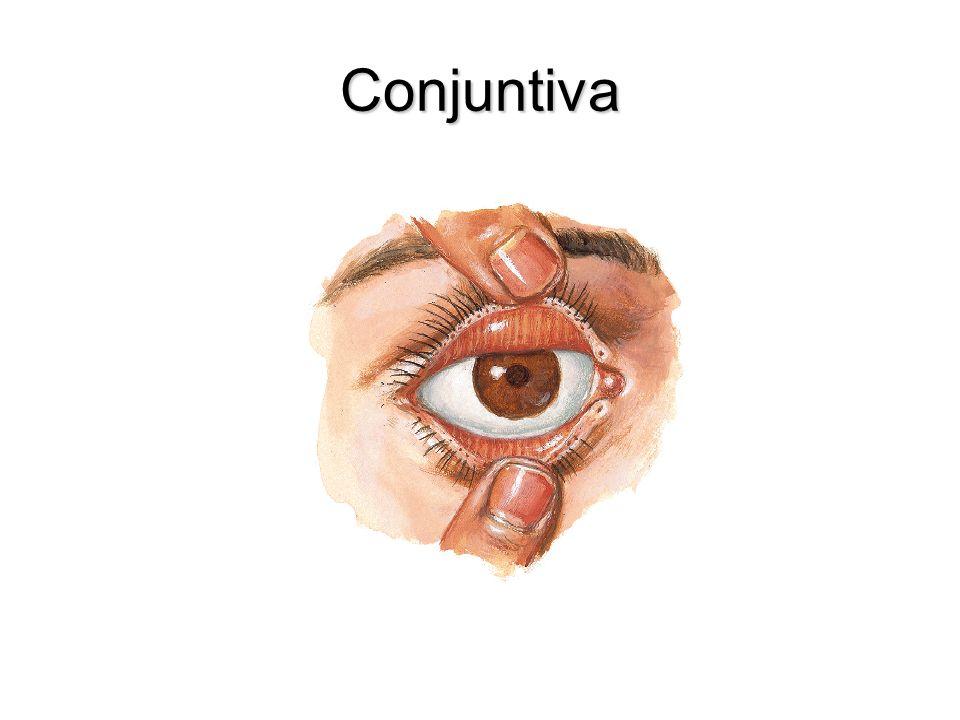Conjuntiva