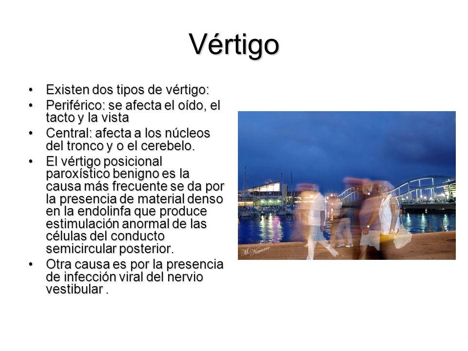 Vértigo Existen dos tipos de vértigo: