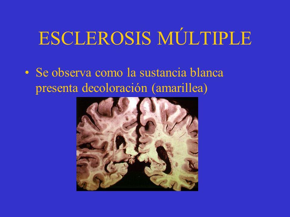 ESCLEROSIS MÚLTIPLE Se observa como la sustancia blanca presenta decoloración (amarillea)