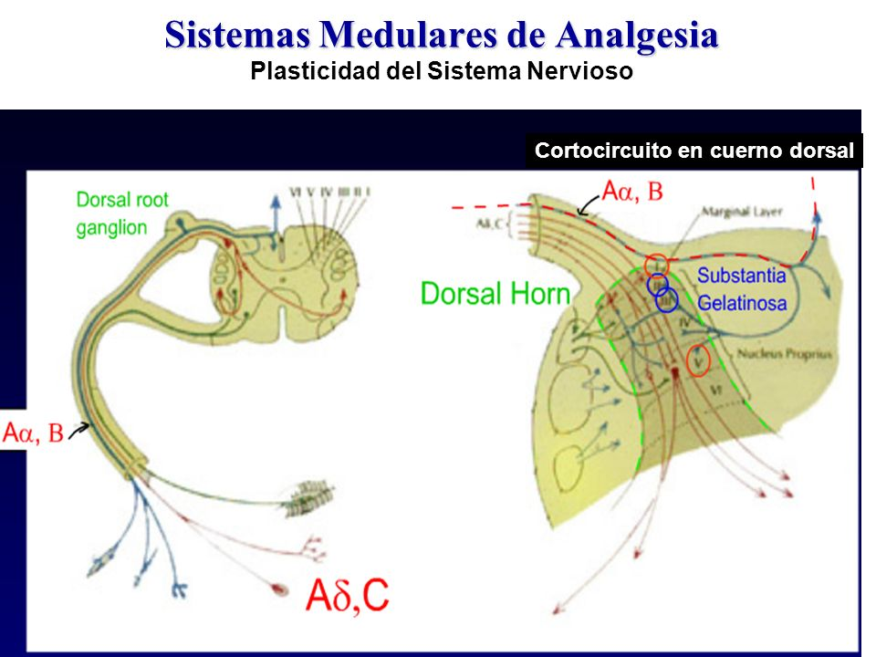 Sistemas Medulares de Analgesia Plasticidad del Sistema Nervioso