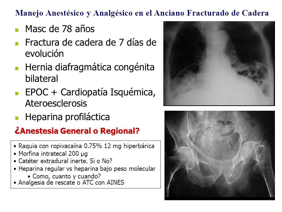 Manejo Anestésico y Analgésico en el Anciano Fracturado de Cadera