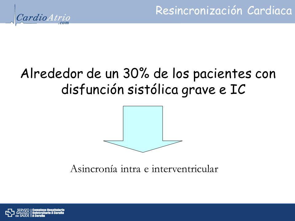 Asincronía intra e interventricular