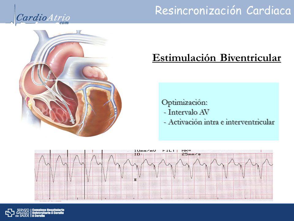 Estimulación Biventricular