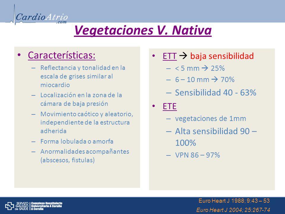 Vegetaciones V. Nativa Características: ETT  baja sensibilidad