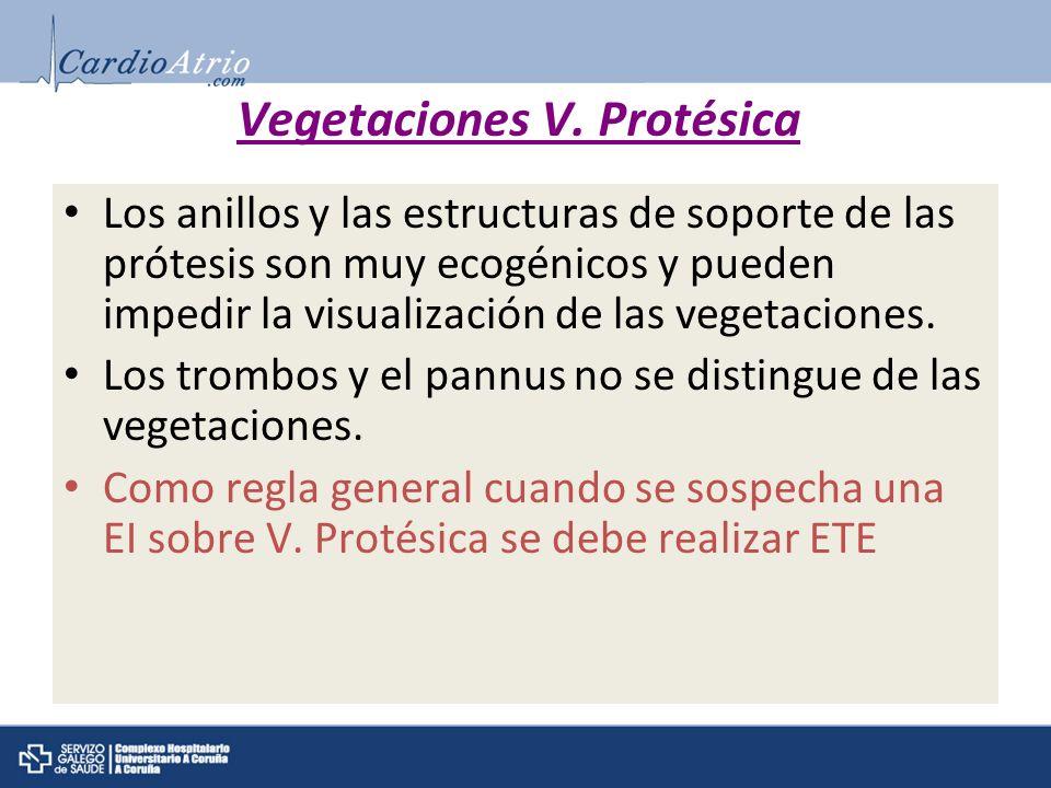 Vegetaciones V. Protésica